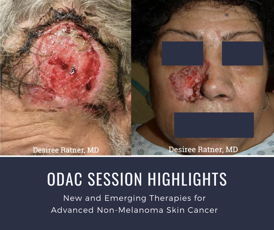Advanced non-melanoma skin cancer patient image