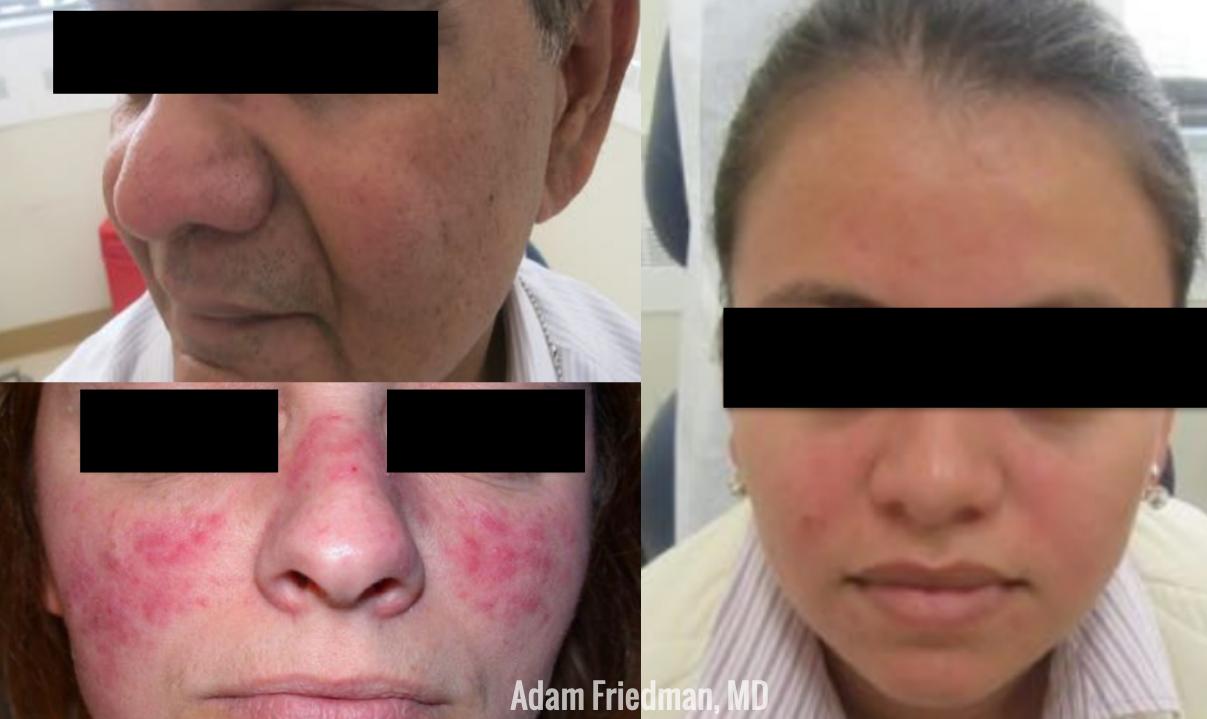 Dermatology Patient with Rosacea