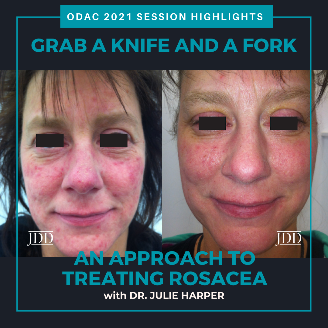 ODAC Dermatology Conference Highlights Rosacea
