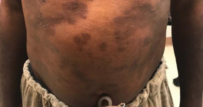 atopic dermatitis two weeks following initiation of dupilumab.