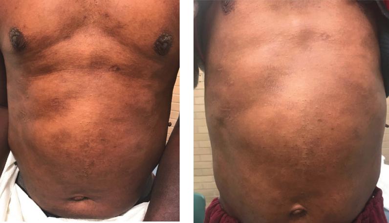 atopic dermatitis, post-inflammatory hyperpigmentation and apparent hyperpigmentation