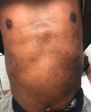 Resolution of atopic dermatitis flare