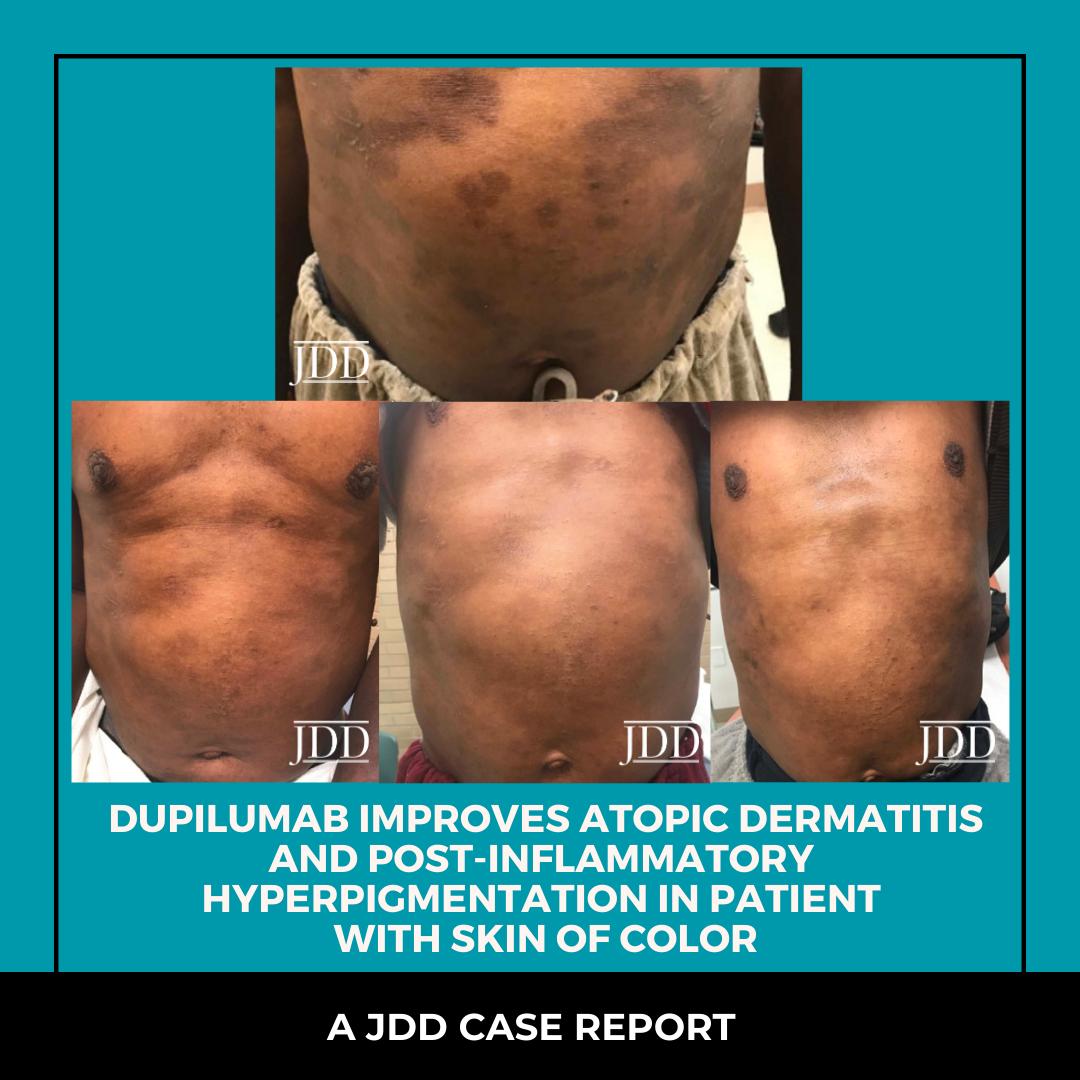 Dupilumab improves atopic dermatitis