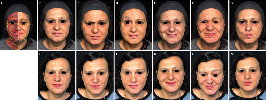 onabotulinumtoxinA in a patient with facial palsy